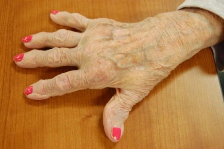 arthritis-curcumin-1